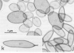 Chrysochromulina polylepis, author: Larsen, Jacob
