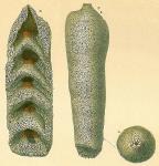 Loeblichopsis sabulosa
