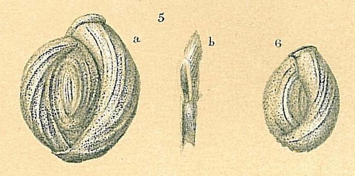 Pseudomassilina macilenta
