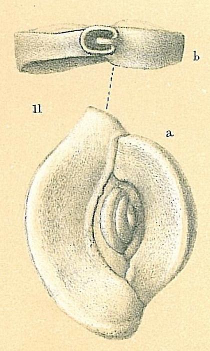 Spiroloculina henbesti