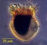 Metacylis jörgensenii (Cleve) Kofoid et Campbell, 1929