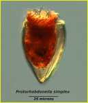 Protorhabdonella simplex (Cleve) Jrgensen, 1924  AphiaID: 341672