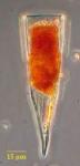 Protorhabdonella striatura Kofoid & Campbell, 1929