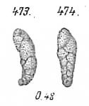 Virgulina subsquamosa