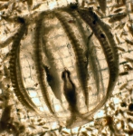 Ctenophora (Sea gooseberries)