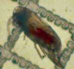 Scolecithricella minor