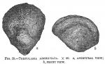 Textularia abbreviata