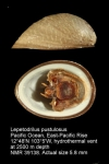 Lepetodrilus pustulosus