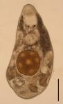 Albertorhynchus amai (Polycystididae, Kalyptorhynchia, Rhabdocoela, Platyhelminthes).