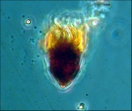 Oligotrich Ciliate
