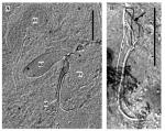 Limipolycystis sicilicula