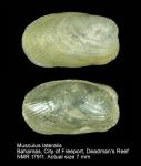 Musculus lateralis