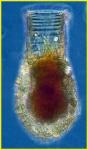 Codonellopsis morchella