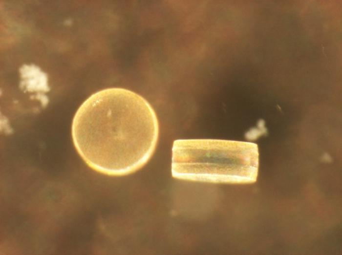 Coscinodiscus