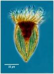 Protorhabdonella simplex
