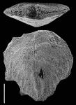 Punctobolivinella philippinensis (McCulloch) SCHIZONT