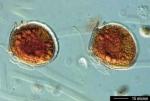 Dinophysis rotundata