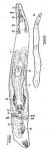 Karkinorhynchus bruneti