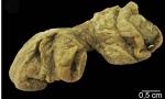 Plakortis spinalis
