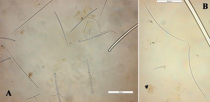 Clathria gradalis spicules