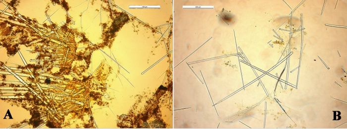 Clathria toxitenuis spicules