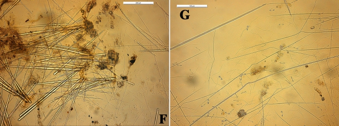 Clathria toximajor skeleton and spicules
