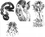 Cirrifera sopottehlersae