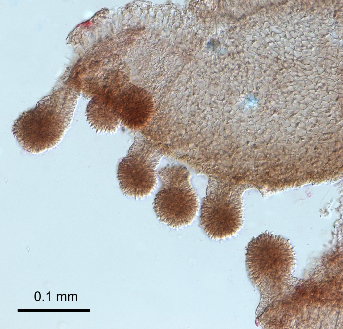 Oceania armata, stalked nematocyst clusters of the mouth margin