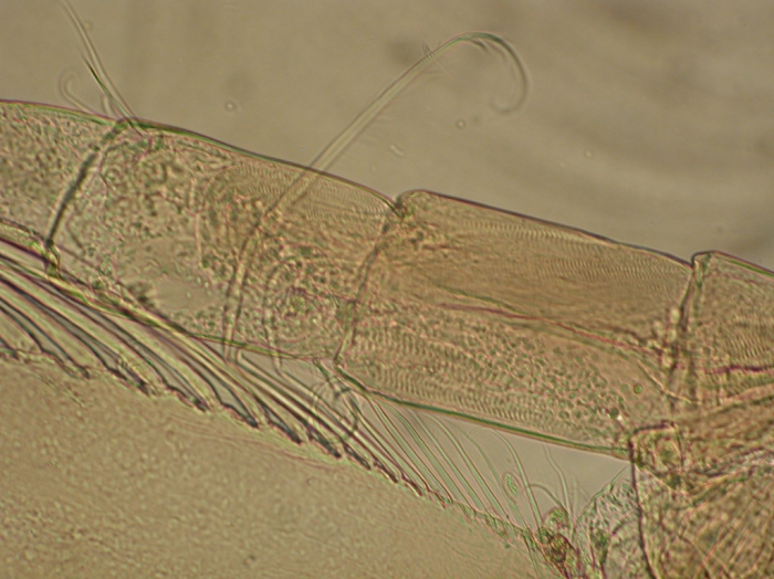 Part: Antennal peduncle