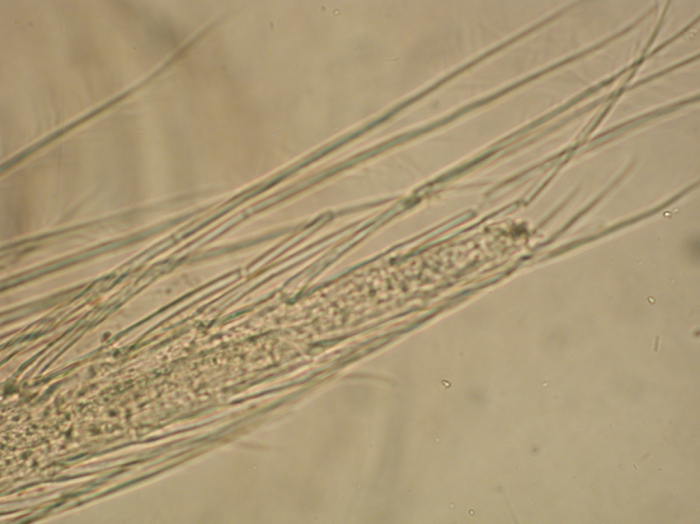 Part: Antennal scale