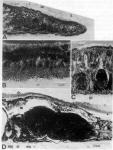 Nematoplana pullolineata
