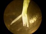 Part: Abdomen dorsal