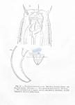 Nematoda (roundworms)