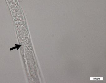 Aegialoalaimus elegans