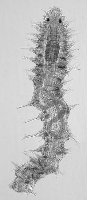Paratype juvenile of Neocamacolaimus parasiticus inside the host