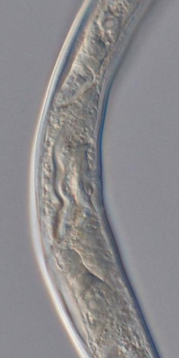 Paratype female midbody of Deontolaimus timmi