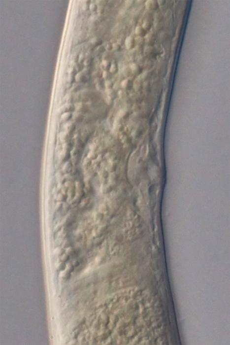 Holotype female midbody of Loveninema tubulosa