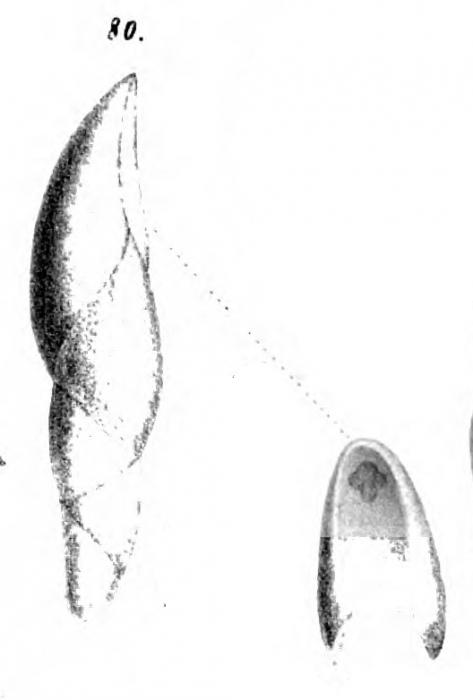 Pleurostomella alternans Schwager, 1866