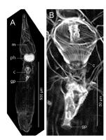 Freddius tricaudatus gen. et sp. nov. Images obtained from confocal laser scanning microscopy, ICHUM 4833 (paratype).