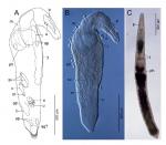 Proschizorhynchella caudociliata sp. nov.