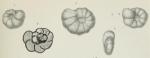 Endothyra bowmani Phillips, 1846 sensu Brady, 1876