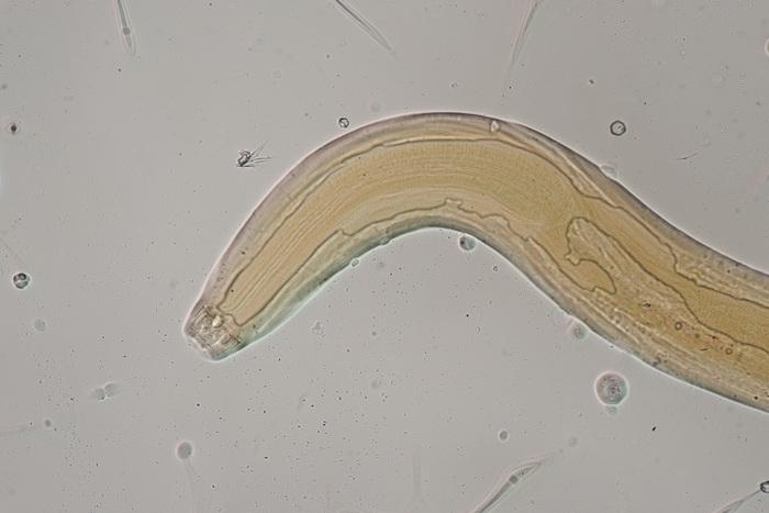 Lectotype male of Sphaerolaimus arcospiculum