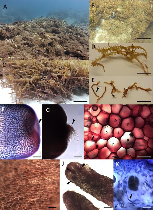 Morphological features of Chondria tumulosa sp.nov.