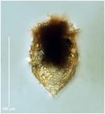 Tintinnopsis meunieri