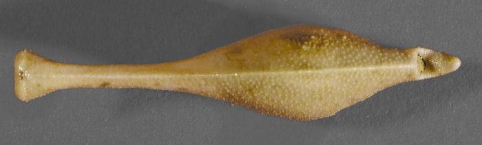 Echinosigra phiale (aboral)