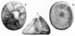 Pilematechinus vesica (Challenger Expedition)