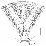 Astropyga radiata (interambulacrum)