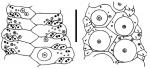 Phormosoma bursarium (ambulacral plates)