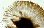 Ralfsia verrucosa