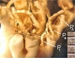 Psathyrometra inusitata A. H. Clark, 1912, holotype, proximal pinnules